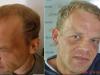 implant-transplant-par-turcia-dr-tayfun-8