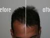 transplant-par-turcia-before-after