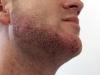 metoda-fue-barba