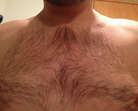 After body hair transplant par