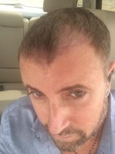Botezatu inainte de implantul de par