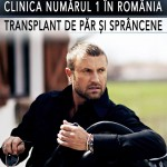 Catalin Botezatu isi face transplant de par? Designerul este noua imagine a clinicii Dr. Felix Hair Implant!