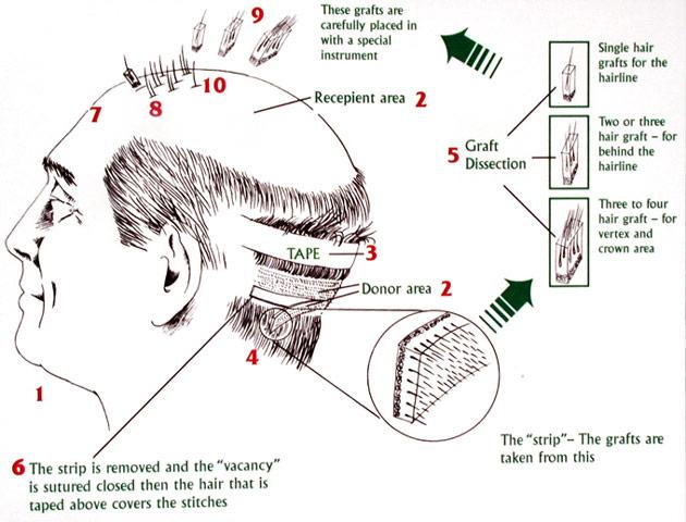 Implant de par prin metoda STRIP | Transplat de par tehnica STRIP