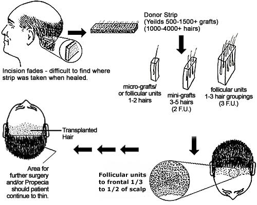 Glosar Transplant de par | Termeni implant par