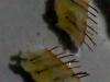 hair-transplant-strips