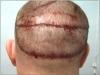 transplant-par-metoda-strip2
