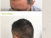 hair-transplant-implant-par-pret-turcia-2