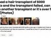 hair-transplant-implant-par-pret3
