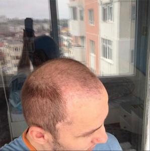 Transplant de par Mihai Traistariu