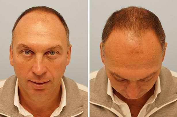 David Platt inainte de implantul de par cu ARTAS