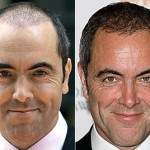 James-Nesbitt-Before-and-After-Hair-Transplant