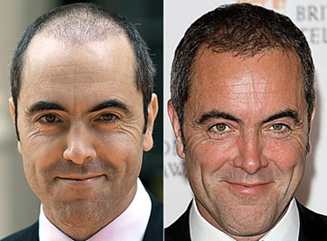 James-Nesbitt-Before-and-After-Hair-Transplant