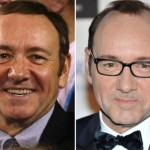 KEVIN-SPACEY-hair-transplant