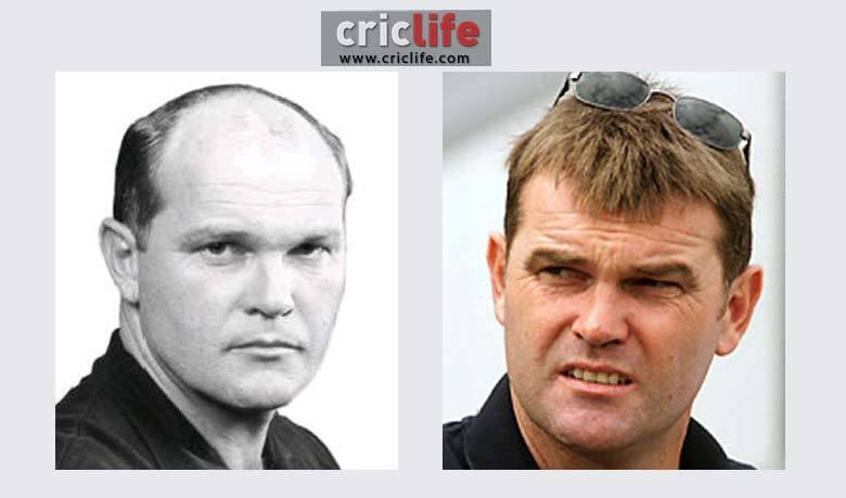 Martin Crowe hair implant