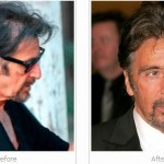 al-pacino-hair-transplant-implant