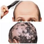 alopecia androgenetica vs areata