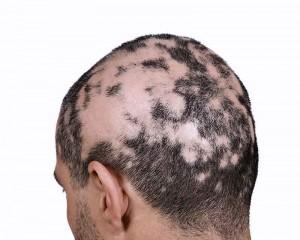 alopecia areata tratament implant par