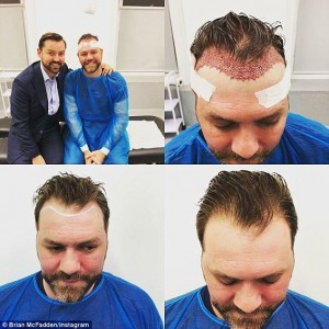 brian mcfadden after hair transplant surgery