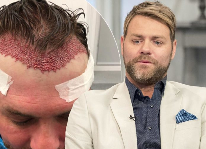 brian-mcfadden after hair transplant result