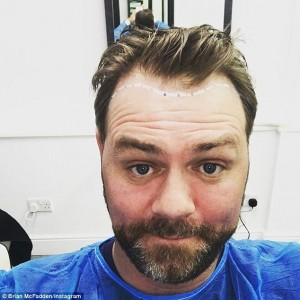 brian mcfadden hair transplant before