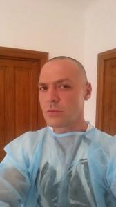 cornel-pasat-inainte-de-implantul-de-par