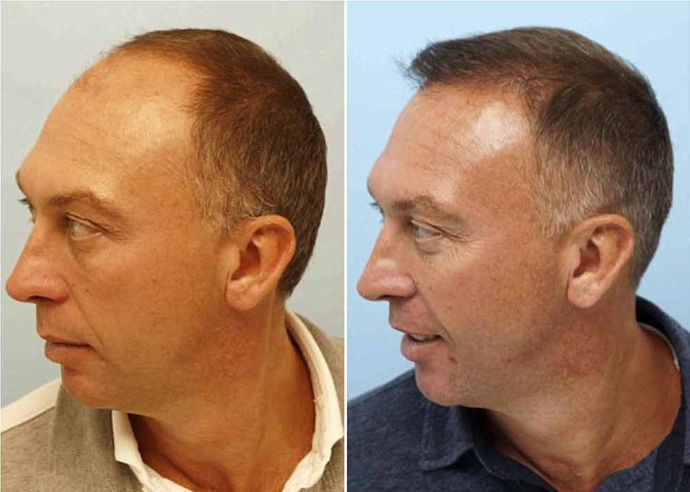 implantul de par al lui david platt