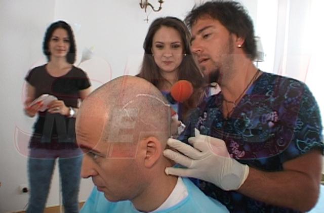 implant de par dinu maxer - dr felix hair implant