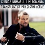 dr-felix-hair-implant-transplant-par-catalin-botezatu