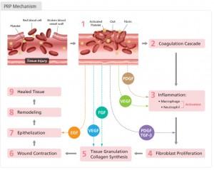 Factorii de crestere PRP