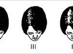 Patternul feminin de alopecie