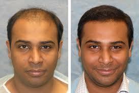 hair-transplant india