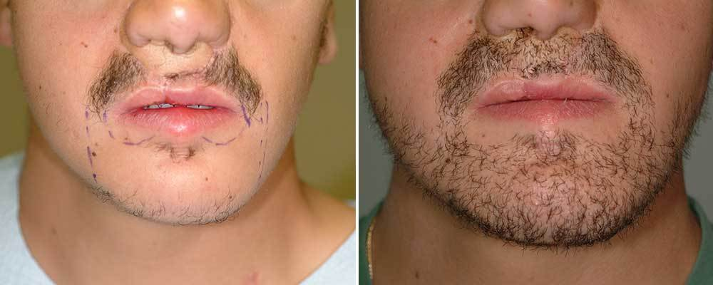hair-transplant-implant-par-beard-barba-romania