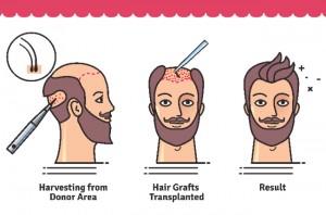 transplant de par poze | rezultat implant de par fue