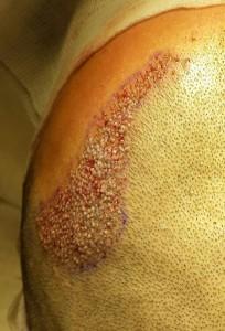 implant-de-par-cornel-pasat1