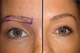 Implant de sprancene | Transplant de par pentru sprancene