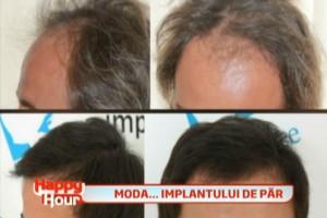 implant par dr felix popescu