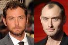 Caru' cu vedete – Implantul de par al lui Jude Law