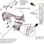 Implantul de par – Metoda STRIP
