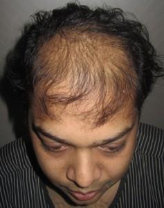 india-hair-transplant-implant