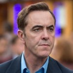 james-nesbitt-implant-par
