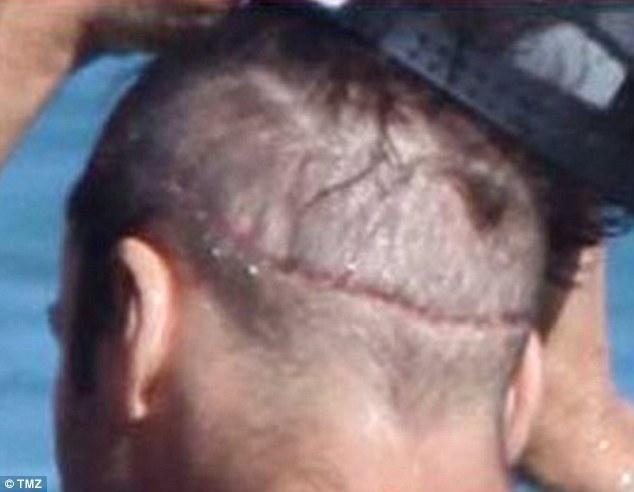 Jeremy Piven after Hair Transplant