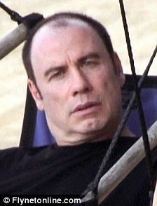 john-travolta-baldness