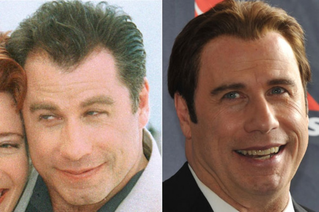 john-travolta-before-and-after-hair-transplant