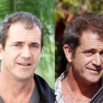 mel-gibson-hair-transplant-before-after