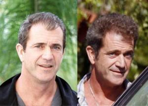Transplant de par Mel Gibson | Hair Transplant Implant Poze