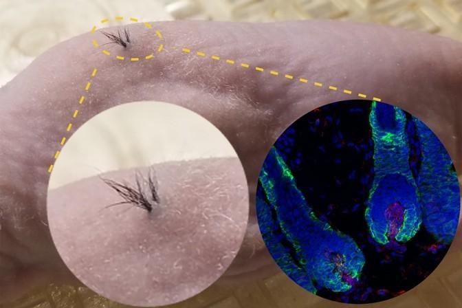 transplant par celule stem