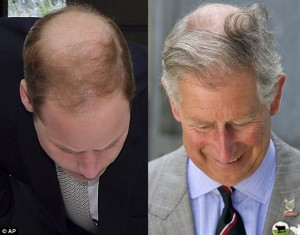 prince-william-bald-hair-transplant