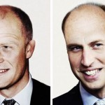 princes-baldness-harry-william-hair-transplant