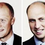 Printii Harry si William au nevoie de un transplant de par