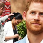 prince harry hair transplant de par